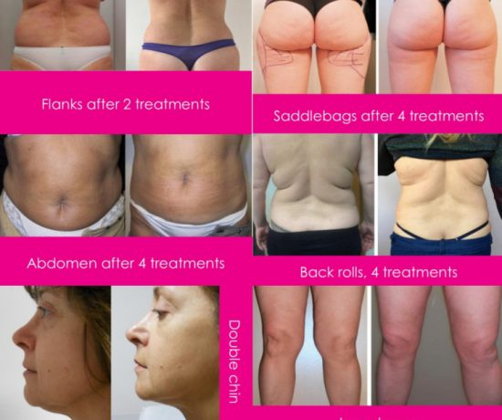 Level:Intermediate|Cost:£850|Duration of course: 1 Day|CPD Hours: 8|Practical experience:4 hours treating live models